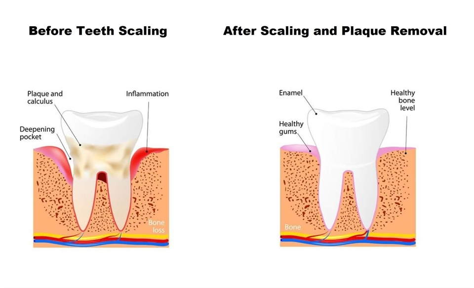 When is teeth scaling considered urgent?