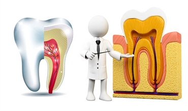 Endodontist for emergency root canal treatment in London