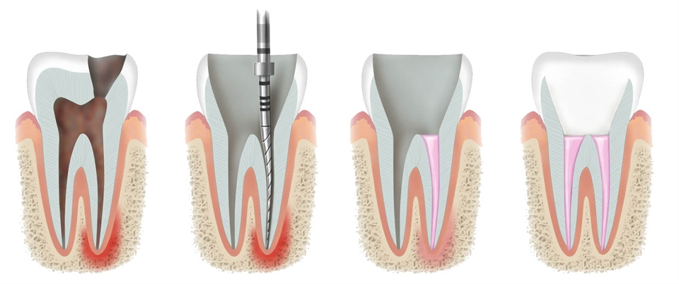 Root canal procedure can save your tooth